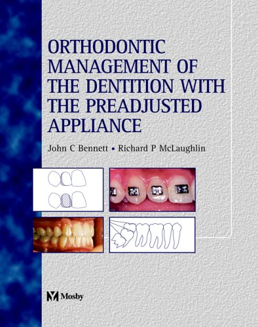 orthodontic-management-of-the-dentition-with-the-pre-adjusted-appliance
