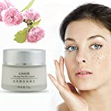 Skin Whitening Cream,Woopower New Anti Melasma Dark Age Spots Freckle Remover Lightening Face Cream - 25 ML