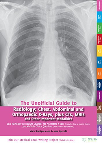 The Unofficial Guide to Radiology: Chest, Abdominal, Orthopaedic X Rays, plus CTs, MRIs and Other Important Modalities (Unofficial Guides to Medicine) (English Edition)