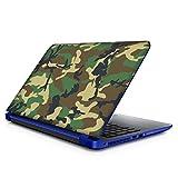 Fashionduet Laptop Skin Compatible For 15.6 Inch Laptop
