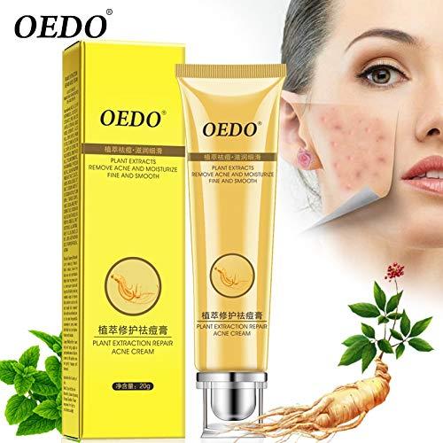 Tyro Ginseng Scutellariae Extrait contre l'acné, contrôle de l'huile du visage Soin de la peau Crème blanchissante 20 g