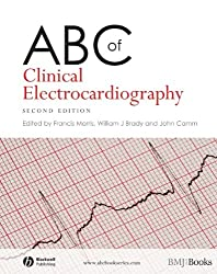 ABC of Clinical Electrocardiography (ABC Series)