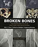 Broken Bones: The Radiologic Atlas of Fractures and Dislocations