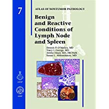 Benign and Reactive Conditions of Lymph Node and Spleen (Atlas of Non-Tumor Pathology, Series 1,)