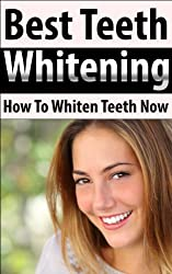 Best Teeth Whitening: How To Whiten Teeth Now (Health and Wellness) (English Edition)