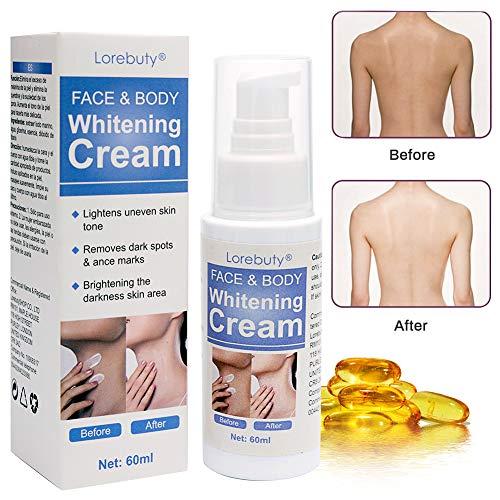 Skin Whitening Cream,Aufhellende Creme,Whitening Creme,Lightening Body Cream,Bleaching Cream für Gesicht & Körper 60ml