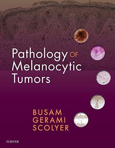 Pathology of Melanocytic Tumors E-Book