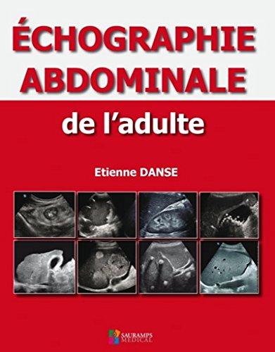 Echographie abdominale de l'adulte par Collectif