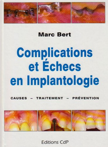 Complications et échecs en implantologie