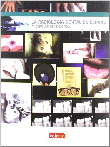 La Radiologia Dental en España por Miguel Alcaraz Baños