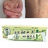 nulala 15g Psoriasi Dermatite Eczema Trattamento Antibatterico Pelle Fungo Crema alle Erbe Pomata, Cura Naturale Psoriasi Unguento