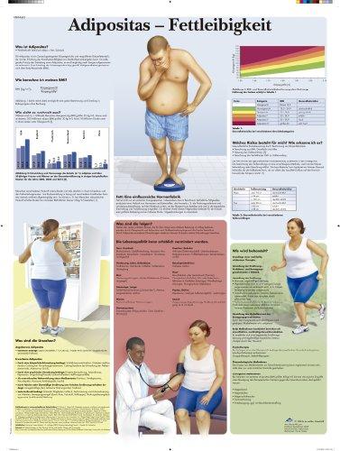 3B Scientific Lehrtafel - Adipositas - Fettleibigkeit