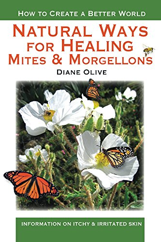 Natural Ways for Healing Mites and Morgellons (English Edition)