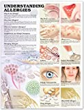 Understanding Allergies Anatomical Chart