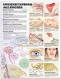 Understanding Allergies Anatomical Chart