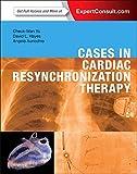 Cardiac Resynchronization Therapy: A Case-Based Approach