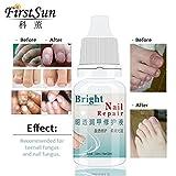 HI5 Best Fungal Onychomycosis Fungal Nail Treatment Toe Nail Serum Repair Fungus Foot