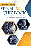 Image de Spinal MRI Quiz Book: Interactive Teaching Files Designed to Hone Your Diagnostic Skills (
