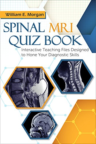 Spinal MRI Quiz Book: Interactive Teaching Files Designed to Hone Your Diagnostic Skills (English Edition)