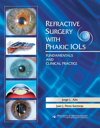 Refractive Surgery With Phakic Iols: Fun And Clinical....