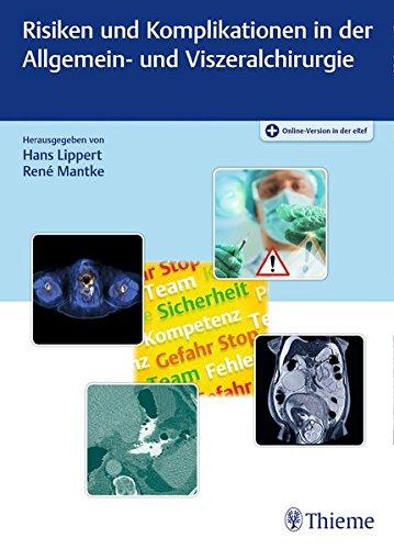 Risiken und Komplikationen in der Allgemein- und Viszeralchirurgie