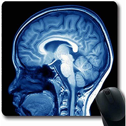 Spielmatte Ray Scan Magnetresonanztomographie Gehirn Angiogramm Röntgen Kinderkopf Human Radiology Design Leben Rutschfeste Computer Mauspad Mauspads Gaming 25X30cm
