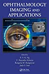 Edited by and featuring contributions from world-class researchers, Ophthalmological Imaging and Applications offers a unified work of the latest human eye imaging and modeling techniques that have been proposed and applied to the diagnosis of oph...