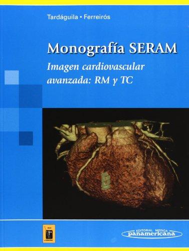 Monografía SERAM: Imagen cardiovascular avanzada: RM y TC (Tardáguila / Ferreirós) por Laura Oleaga Zufiría