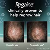 Regaine For Men Hair Regrowth Foam, 73 ml - Triple Pack