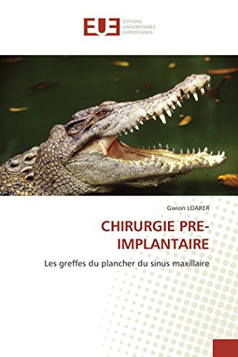 Chirurgie pre-implantaire par Gwion LOARER