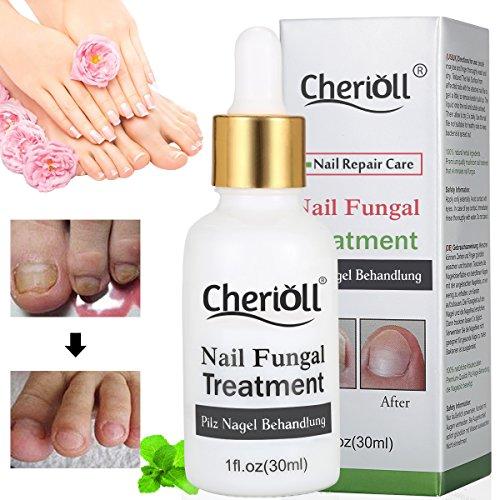 Nagelpilz Öl, Pilz Nagel Behandlung, Anti-Pilz, Natürliche Anti-Pilz-Lösung Mit Reinen ätherischen Ölen - Entfernt Gelb Von Infizierten Finger