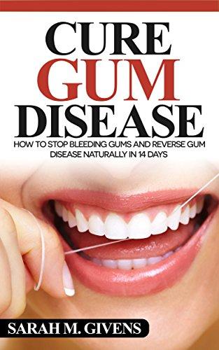 gum-disease-cure-gum-disease-cure-periodontal-disease-gum-disease-gum-infection-gingivitis-treatment