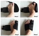 Bheema Big Toes Bunion Splint Straightener Corrector