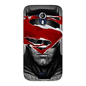 Impressive Uper Over At Back Case Cover for Micromax Canvas Magnus A117