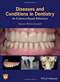 #3: Diseases and Conditions in Dentistry: An Evidence–Based Reference