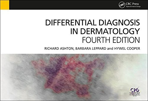 Differential Diagnosis in Dermatology, 4th Edition by Richard Ashton (2014-10-30)
