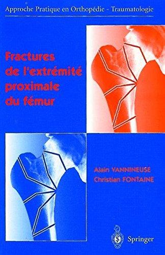 Fractures de l'extrémité proximale du fémur