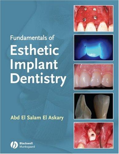 Fundamentals of Esthetic Implant Dentistry