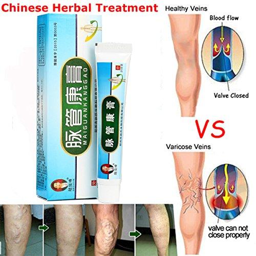 Krampfadern-Behandlung, Luckyfine Natürliche Pflanzliche Kräuter Beinpflegecreme zur sanften Bein und Venenpflege