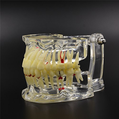Preisvergleich Produktbild Etelux Dental Study Zähne Transparent Erwachsene Pathologische Zähne Modell