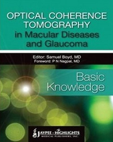 Optical Coherence Tomography in Macular Diseases and Glaucoma - Basic Knowledge by Samuel Boyd (2013-09-12)