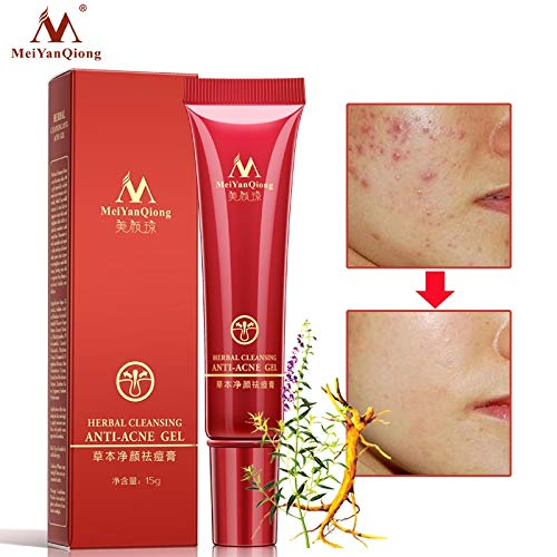 Tyro Herbal Cleansing Gel Anti Acne Cream/Oil Control/Shrink Pores/Acne Scar Remove/Face Whitening Removal Acne Spots Skin Care