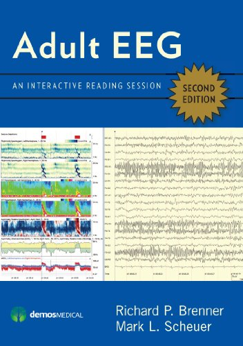 Adult Eeg, Second Edition: An Interactive Reading Session