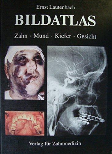Bildatlas Zahn, Mund, Kiefer, Gesicht