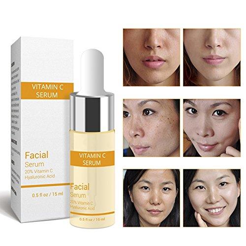 KAYI Whitening Facial Serum feuchtigkeitsspendende Gesichtsessenz Anti-Aging-Lösung - VC Serum - Whitening-lösung