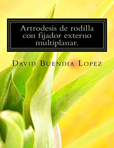 artrodesis-de-rodilla-con-fijador-externo-multiplanar