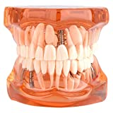 Las prótesis dentales removibles adulto modelo de los dientes del dentista estándar Patológica removibles Herramientas de dientes de enseñanza, color naranja