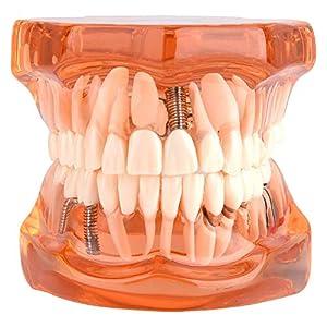 odontologia: Las prótesis dentales removibles adulto modelo de los dientes del dentista están...
