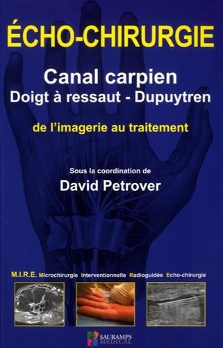 Echo-chirurgie canal carpien, doigt à ressaut - Dupuytren : De l'imagerie au traitement par Collectif
