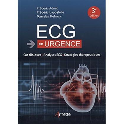 ECG en urgence: Cas cliniques - Analyses ECG - Stratégies thérapeutiques